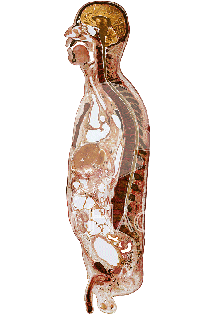 male-whole-body-slice-hg6001-front.png