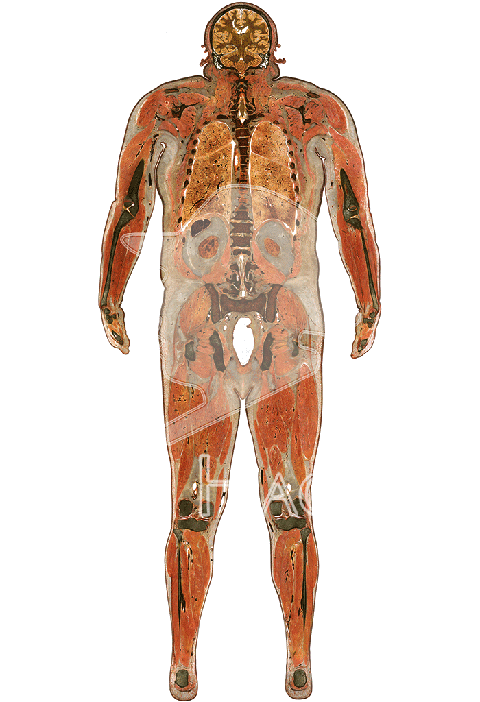male-whole-body-slice-hg6007-front.png