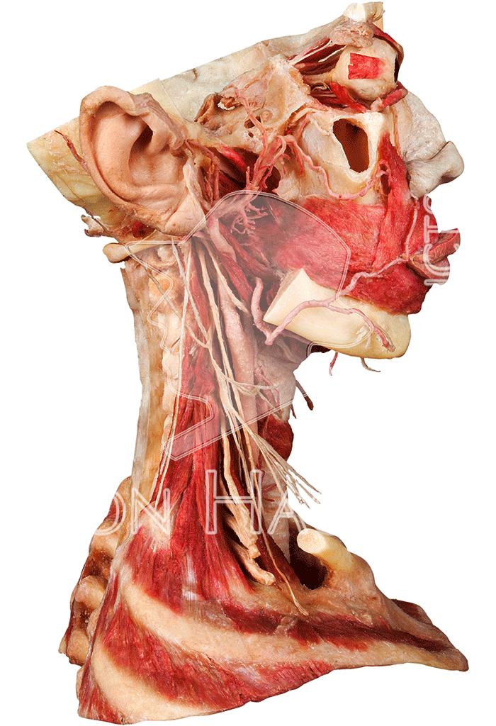 whole-head-specimen-hp0302-right.png