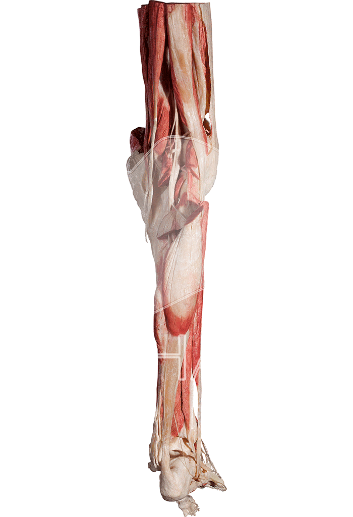 lower-extremity-hp0605-behind.png