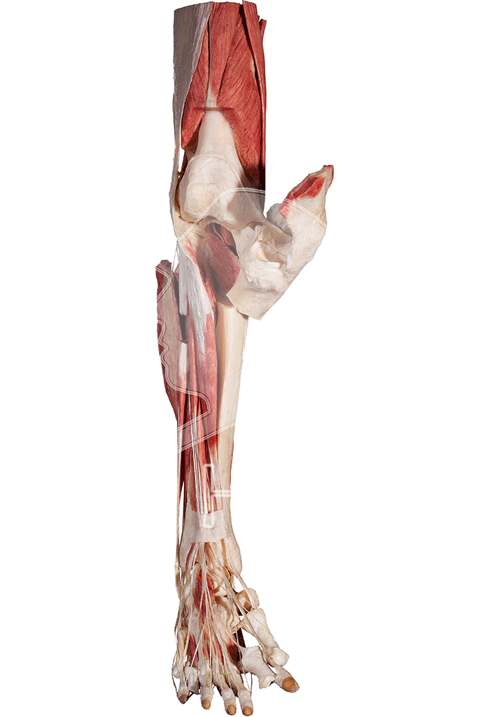 lower-extremity-hp0605-front.png