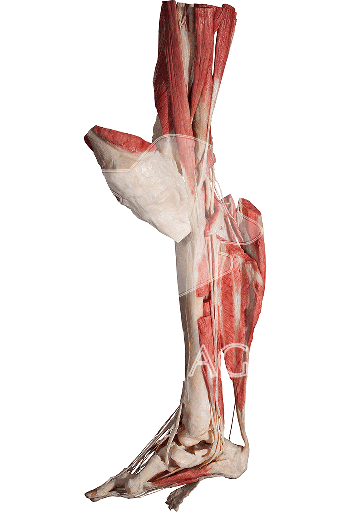 lower-extremity-hp0605-left.png