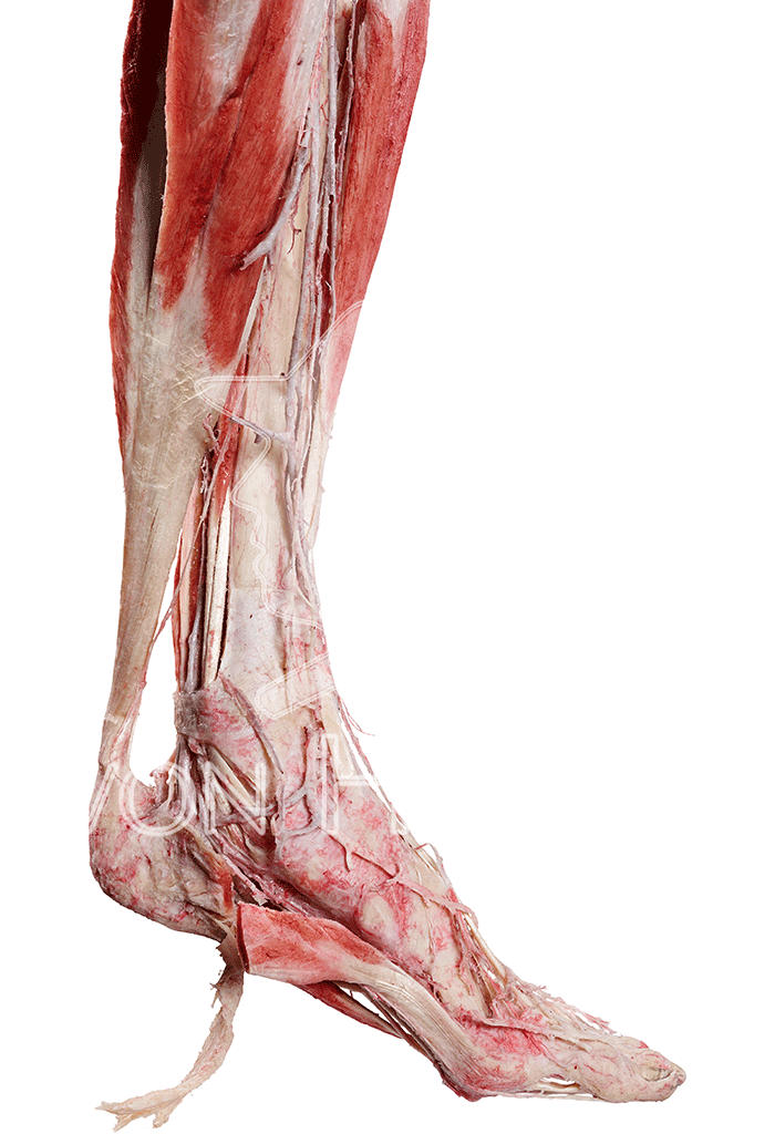 foot-deep-dissection-hp0609-right.png