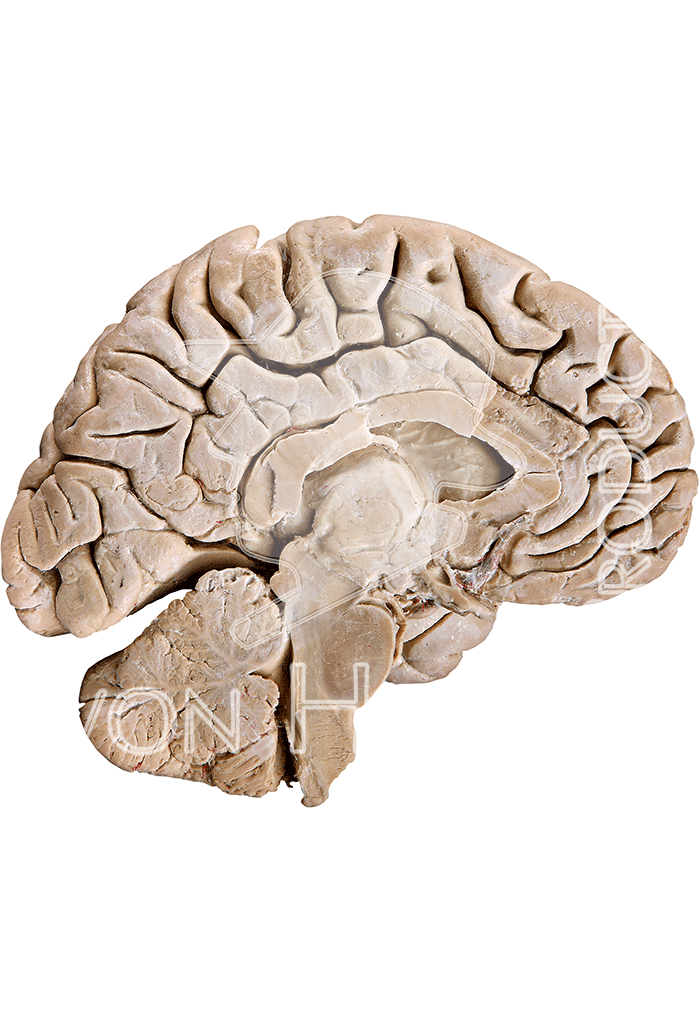 brain-hp1202-right-02.png