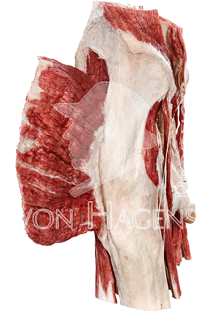 whole-male-pelvis-hp0902-right.png