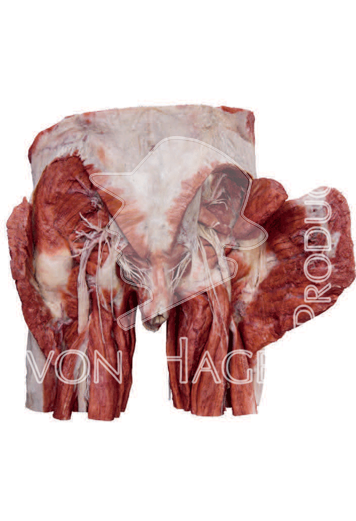 whole-female-pelvis-hp0904-behind.png