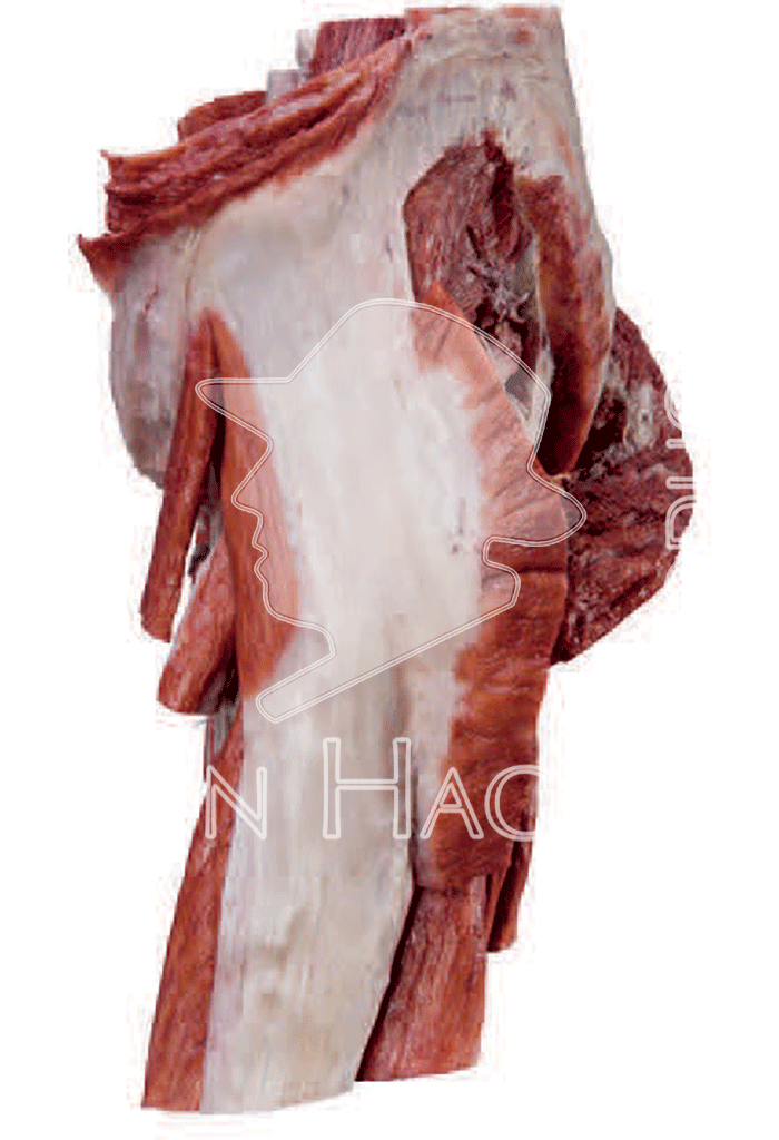 whole-female-pelvis-hp0904-left.png