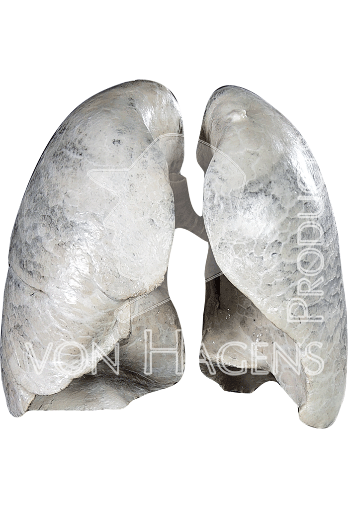non-smoker-lungs-hp1401-front.png