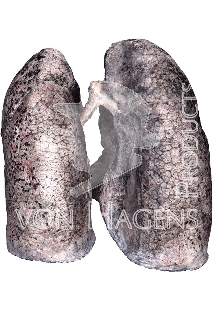 smoker-lungs-hp1402-behind.png