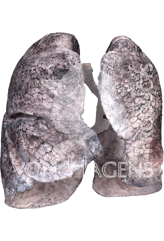 smoker-lungs-hp1402-front.png