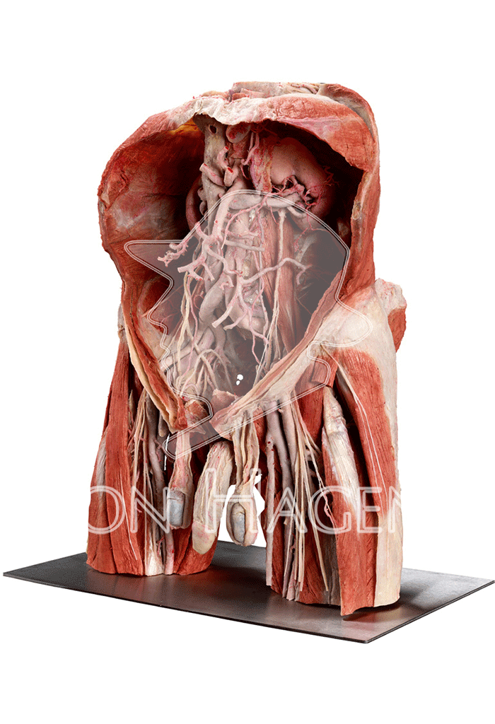 posterior-abdominal-wall-and-male-pelvis-hp0412-left-01.png