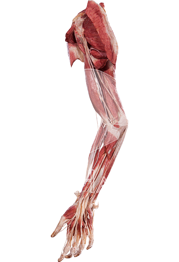 upper-extremity-hp0505-left.png