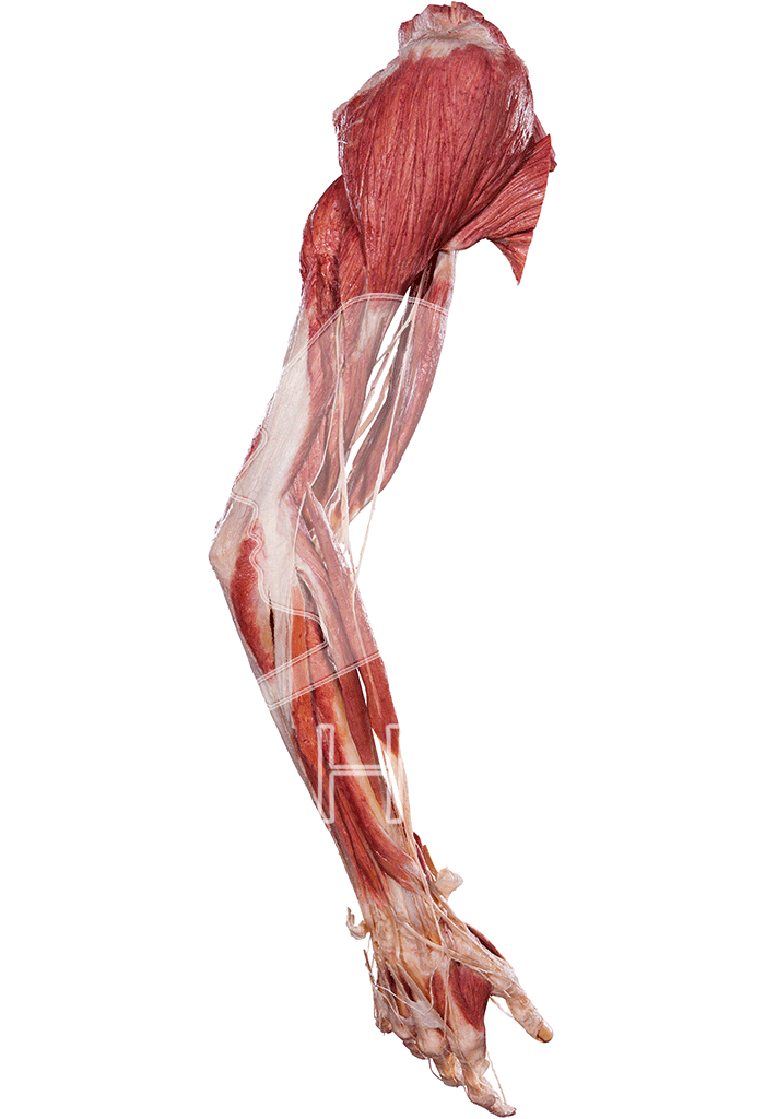 upper-extremity-hp0505-right.png