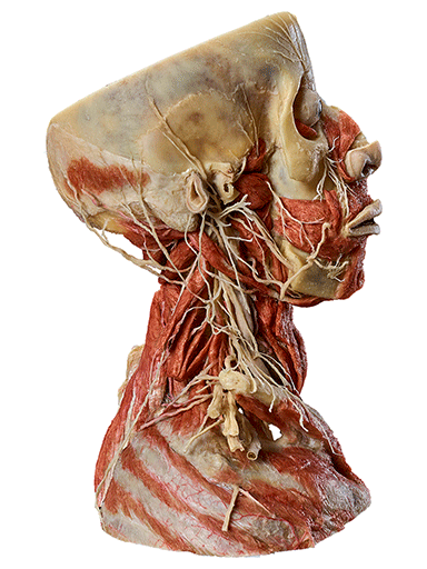 head-and-neck-specimen-hp0203-right