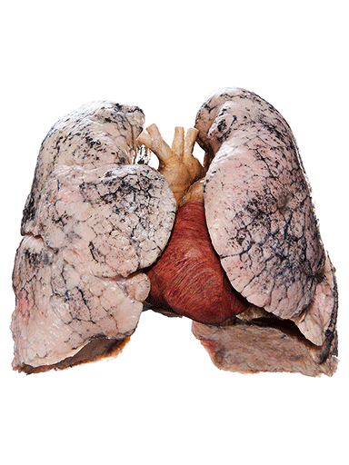 heart-and-lungs-specimen-HP1404-front