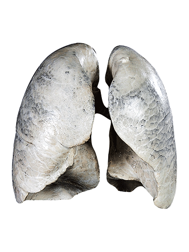 non-smoker-lungs-HP1401-front