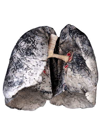 smoker-lungs-HP1403-front